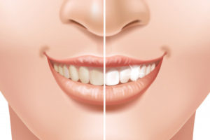 Is Teeth Whitening Safe?