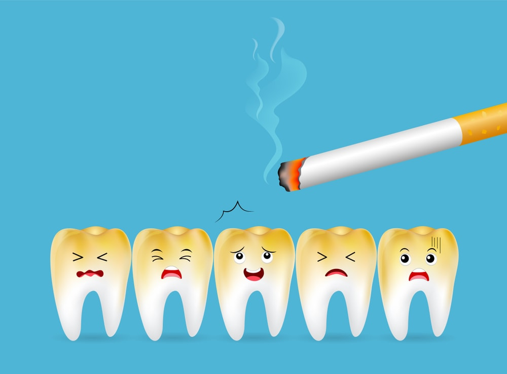Effect of smoking on teeth resulting in discoloration.